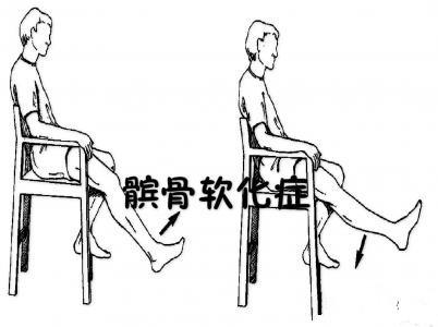 髌骨软化症的治疗(髌骨软化症该怎么治疗)